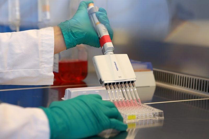 Adrenomedullin-Werte bei schweren COVID-19-Fällen stark erhöht Universitätsklinikum Regensburg veröffentlicht neue Studie über die Viruserkrankung